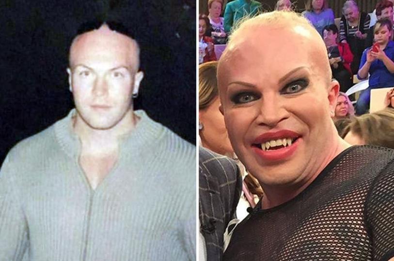 Александр Шпак до и после операции