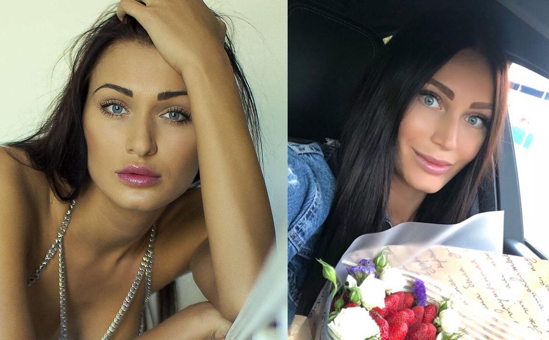 Наталья Шаронова до и после пластики