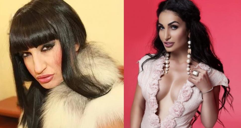 Алина Саакян до и после пластики