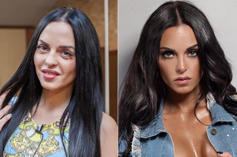 Юлия Ефременкова до и после пластики